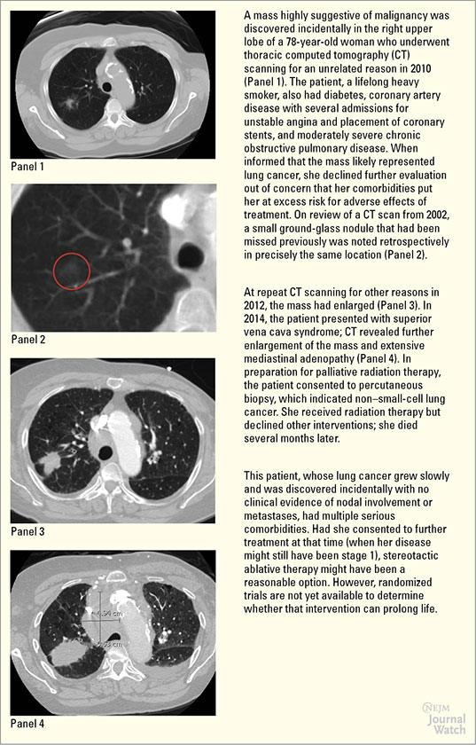 Stereotactic Ablative Radiotherapy for Localized Non–Small